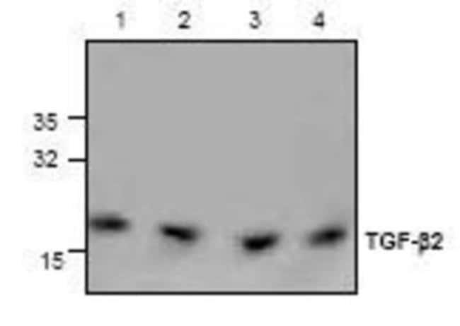 anti-TGF-beta 2, Polyclonal, Novus Biologicals 0.1mg; Unlabeled:Life Sciences