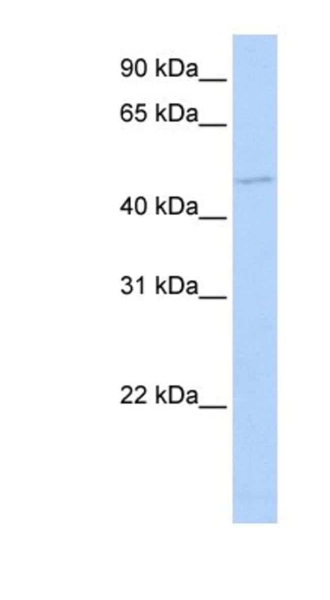 TGIF1 Rabbit anti-Human, Polyclonal, Novus Biologicals 100µL; Unlabeled:Life