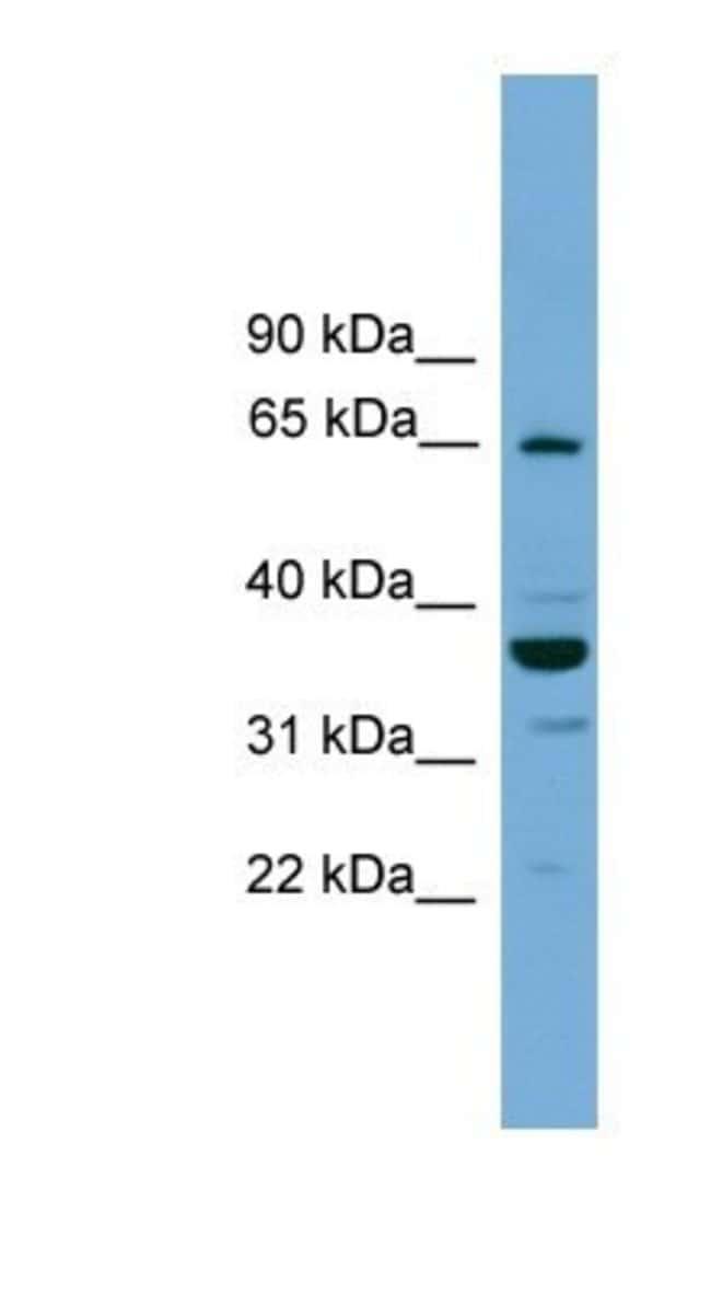 TH1L Rabbit anti-Human, Polyclonal, Novus Biologicals 100µL; Unlabeled:Life