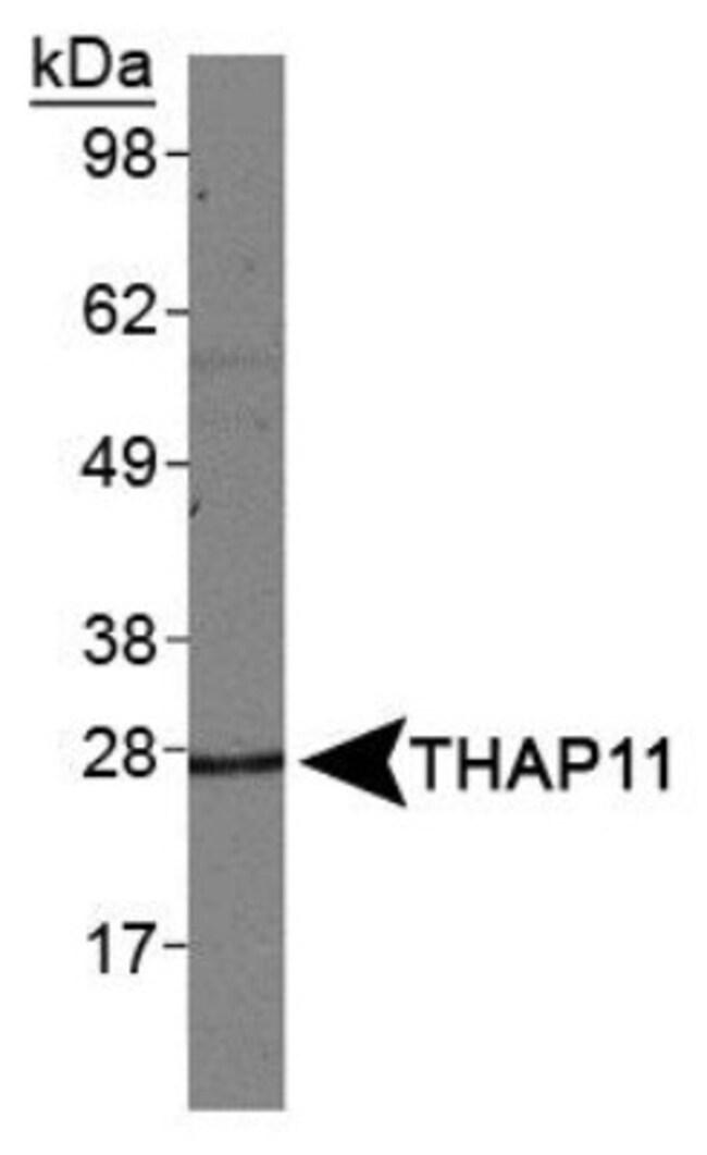 anti-THAP11, Polyclonal, Novus Biologicals:Antibodies:Primary Antibodies