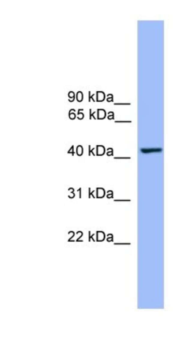 THEG Rabbit anti-Human, Polyclonal, Novus Biologicals 100µL; Unlabeled:Life