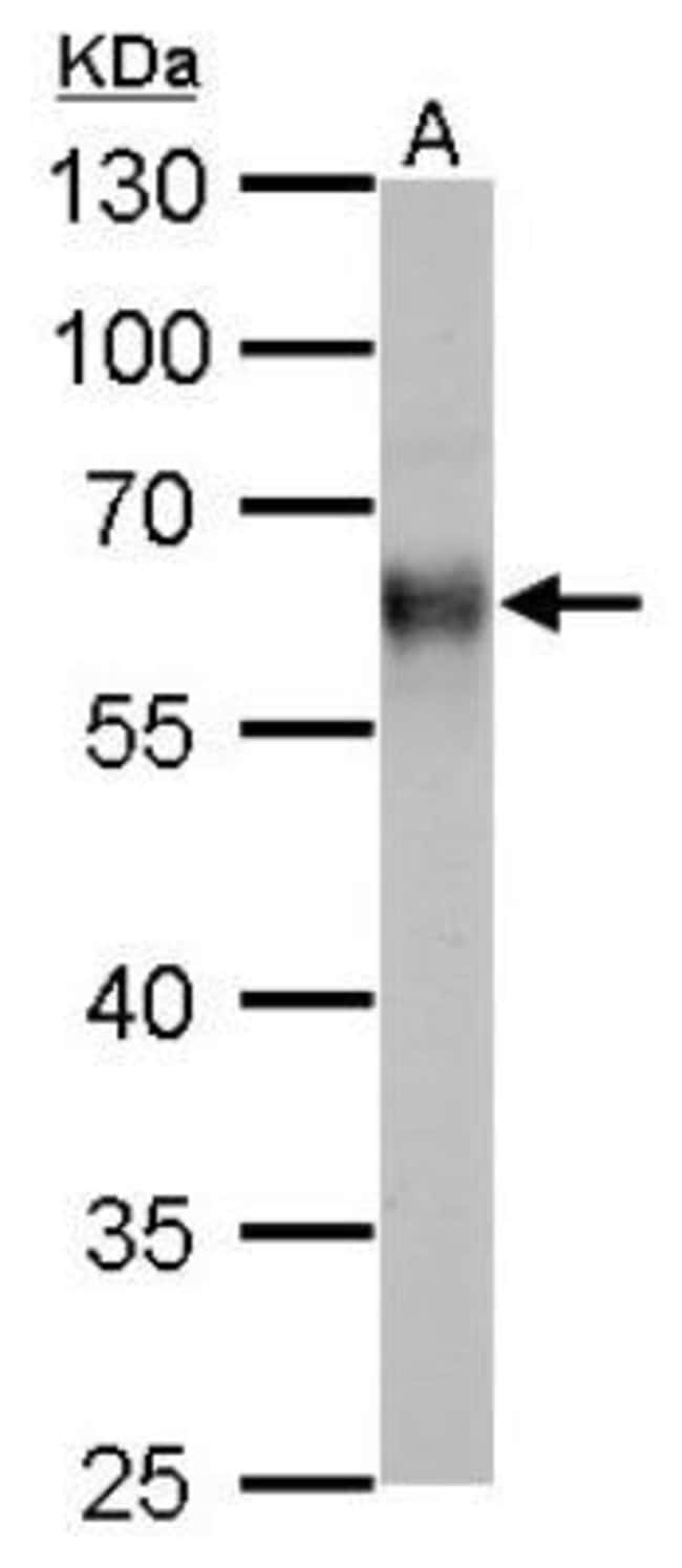 anti-Thioredoxin Reductase 1/TRXR1, Polyclonal, Novus Biologicals 0.1mL;