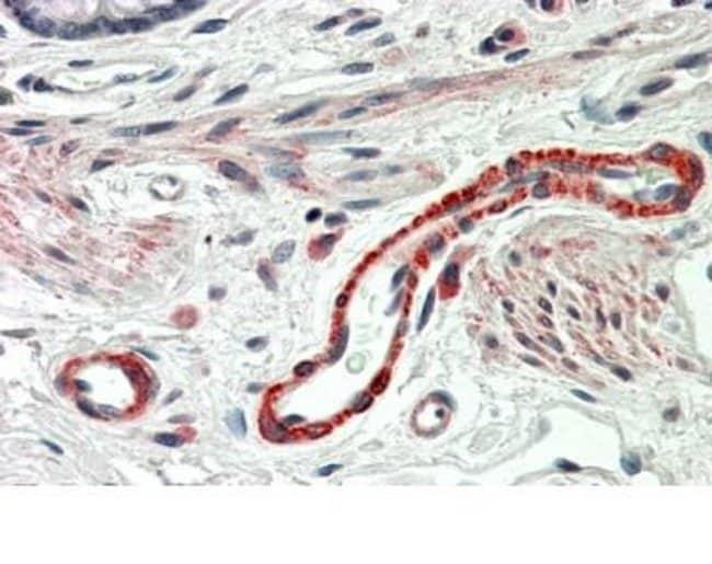 anti-Thrombospondin-3, Polyclonal, Novus Biologicals 0.1mg; Unlabeled:Antibodies