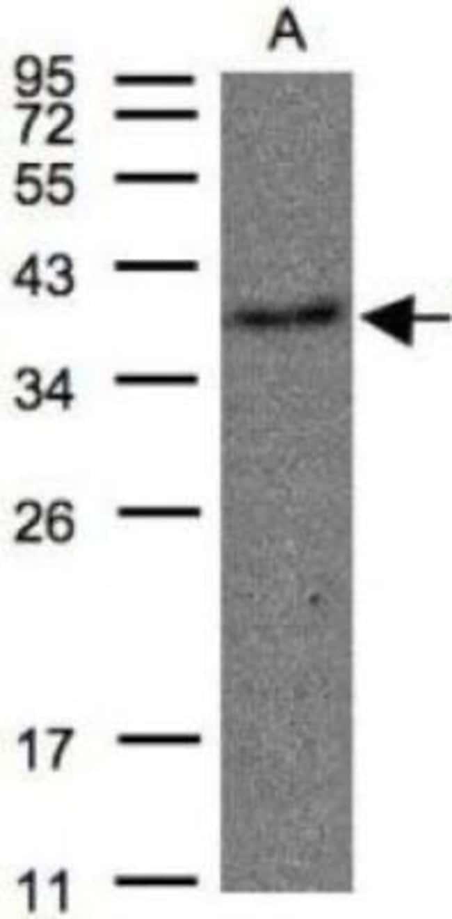 anti-Thromboxane A2 R/TBXA2R, Polyclonal, Novus Biologicals 0.1mL; Unlabeled:Life