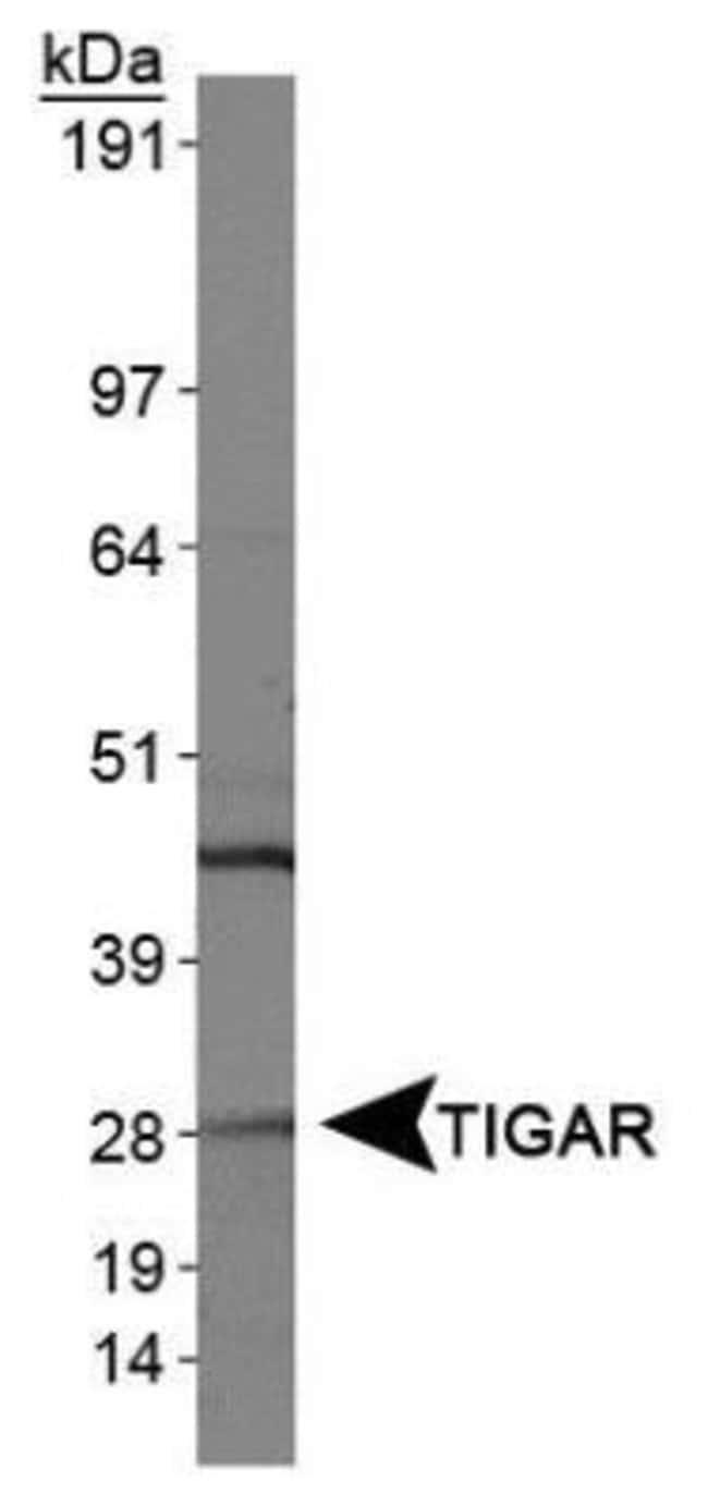 anti-TIGAR/C12orf5, Polyclonal, Novus Biologicals:Antibodies:Primary Antibodies