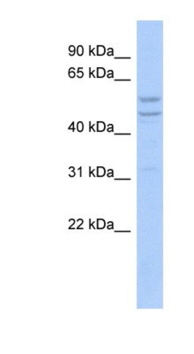 TIMM44 Rabbit anti-Human, Polyclonal, Novus Biologicals 20µL; Unlabeled