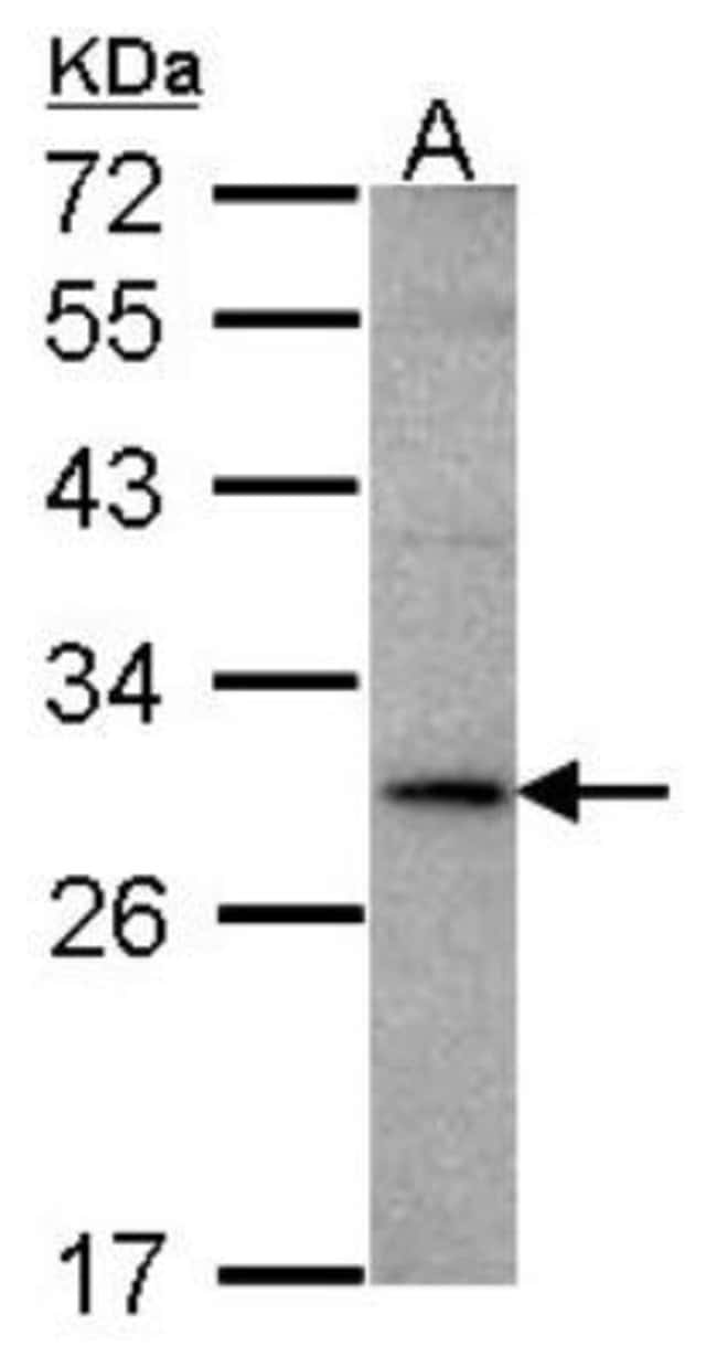 anti-TL1A/TNFSF15, Polyclonal, Novus Biologicals 0.1mg; Unlabeled:Antibodies