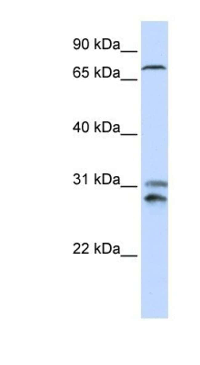 TLK2 Rabbit anti-Human, Polyclonal, Novus Biologicals 20µL; Unlabeled