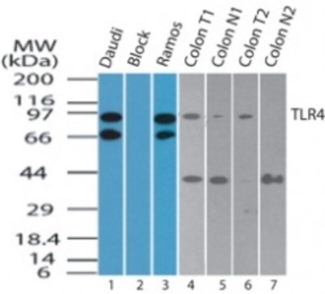 TLR4 Rabbit anti-Human, Polyclonal, Novus Biologicals:Antibodies:Primary