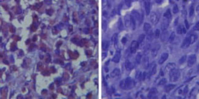 anti-TLR6, Polyclonal, Novus Biologicals:Antibodies:Primary Antibodies