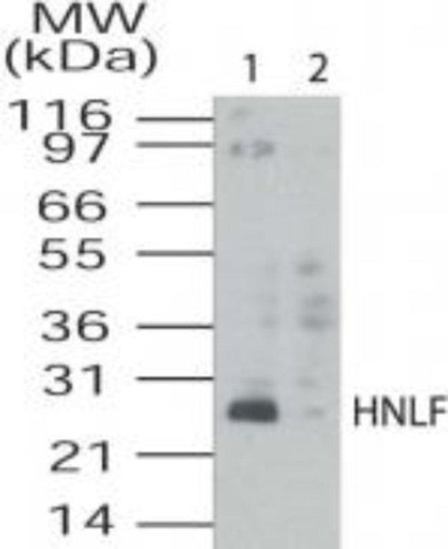 anti-TMED4, Polyclonal, Novus Biologicals:Antibodies:Primary Antibodies