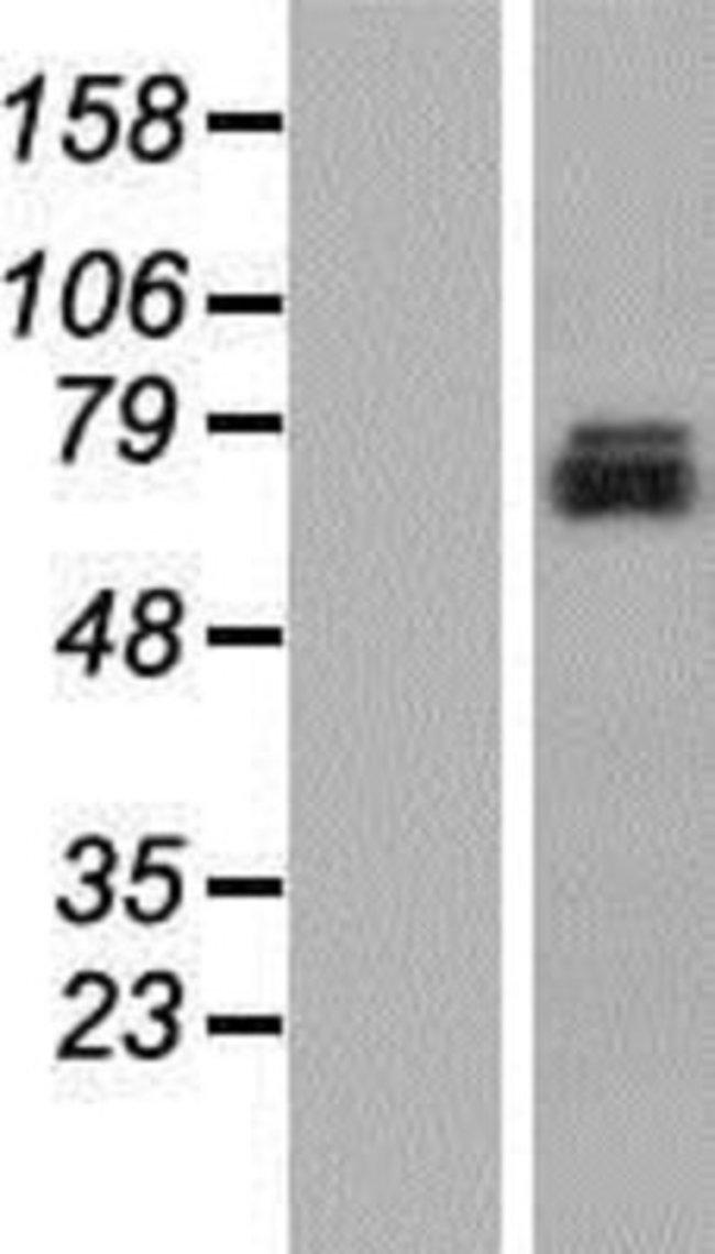 Novus Biologicals TMEM24 Overexpression Lysate (Native) 0.1mg:Life Sciences