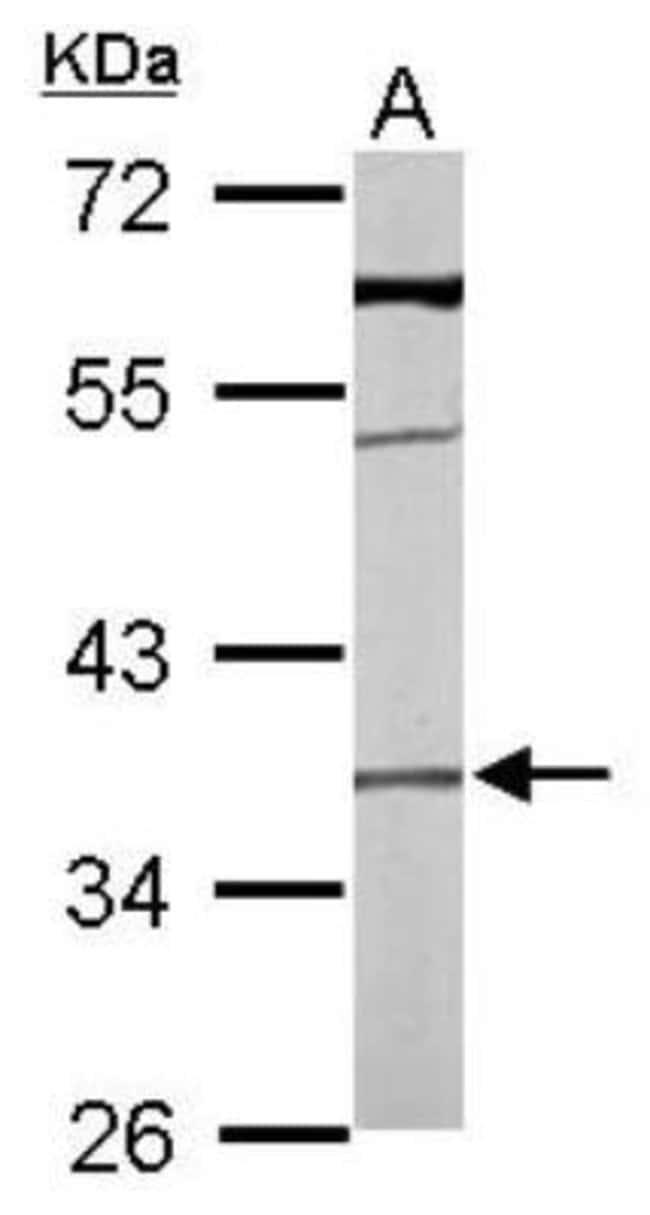 anti-Transmembrane protein 59, Polyclonal, Novus Biologicals 100 ul; Unconjugated:Life