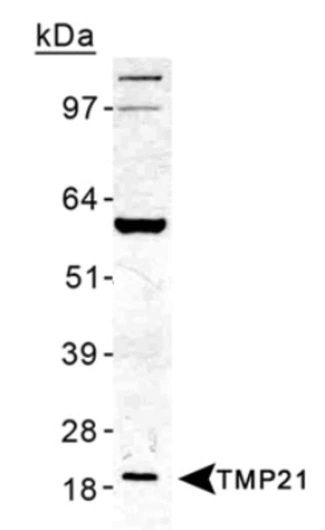 anti-Tmp21/p23, Polyclonal, Novus Biologicals:Antibodies:Primary Antibodies