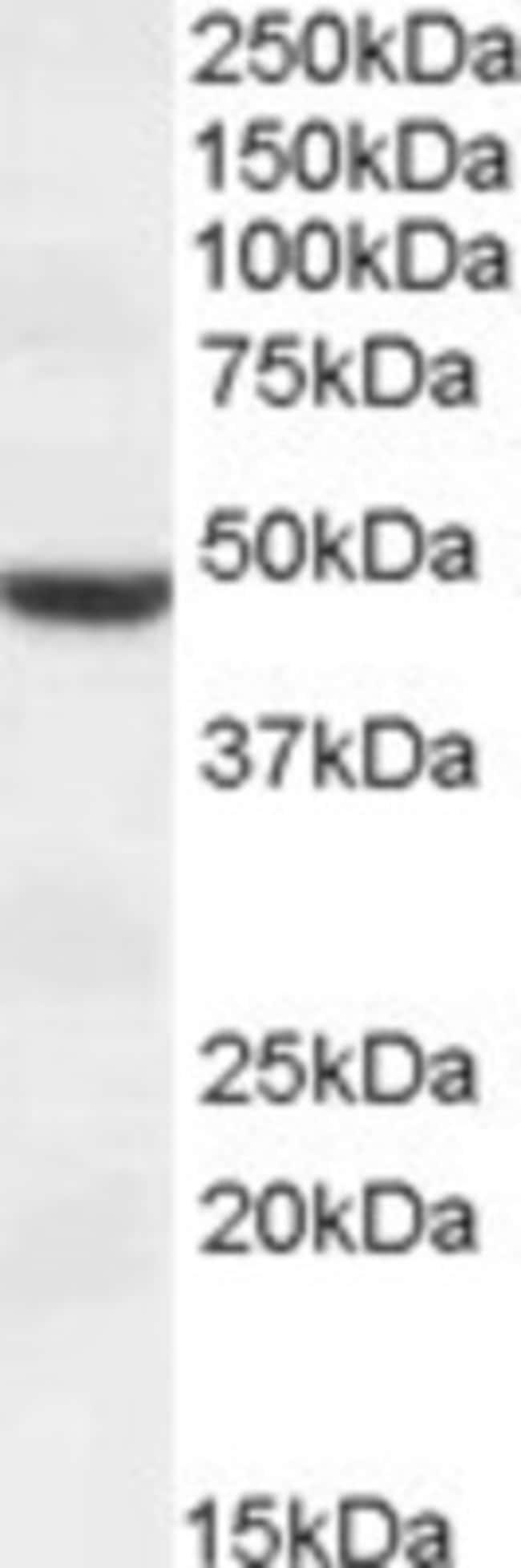 anti-TMPRSS4, Polyclonal, Novus Biologicals 0.1mg; Unlabeled:Life Sciences
