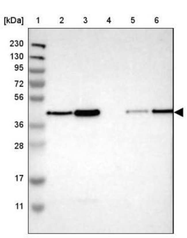 anti-TMX4, Polyclonal, Novus Biologicals 0.1mL; Unlabeled:Life Sciences