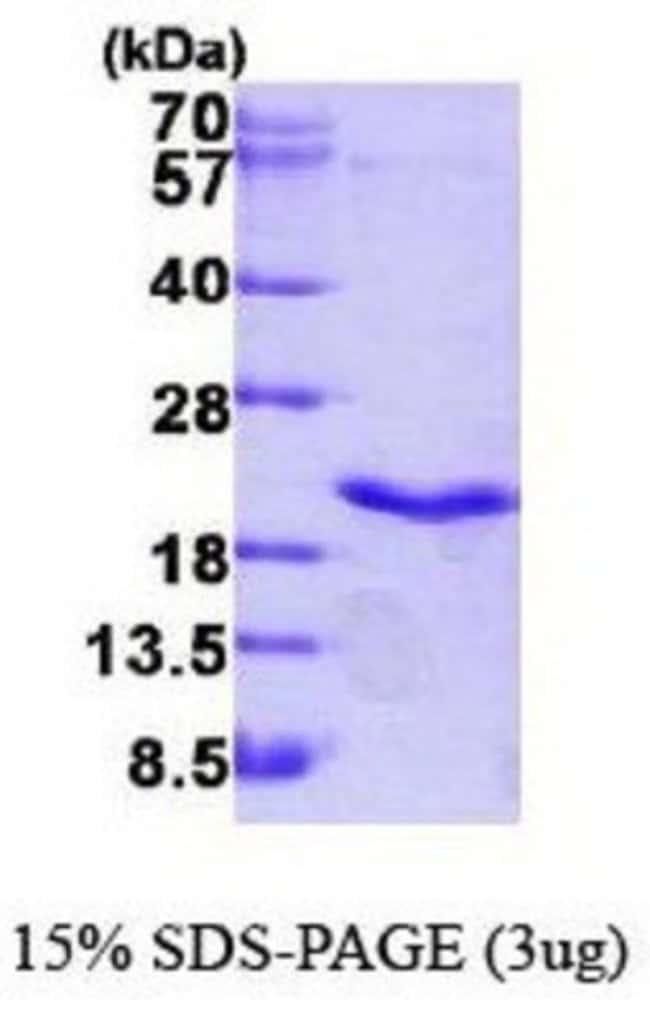 Novus Biologicals Human Lymphotoxin-alpha/TNF-beta Protein 0.05mg; Unlabeled:Life