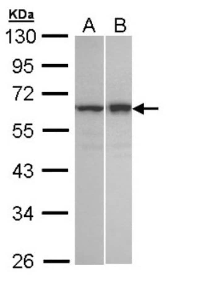 anti-TNIP2, Polyclonal, Novus Biologicals 0.1mg; Unlabeled:Life Sciences