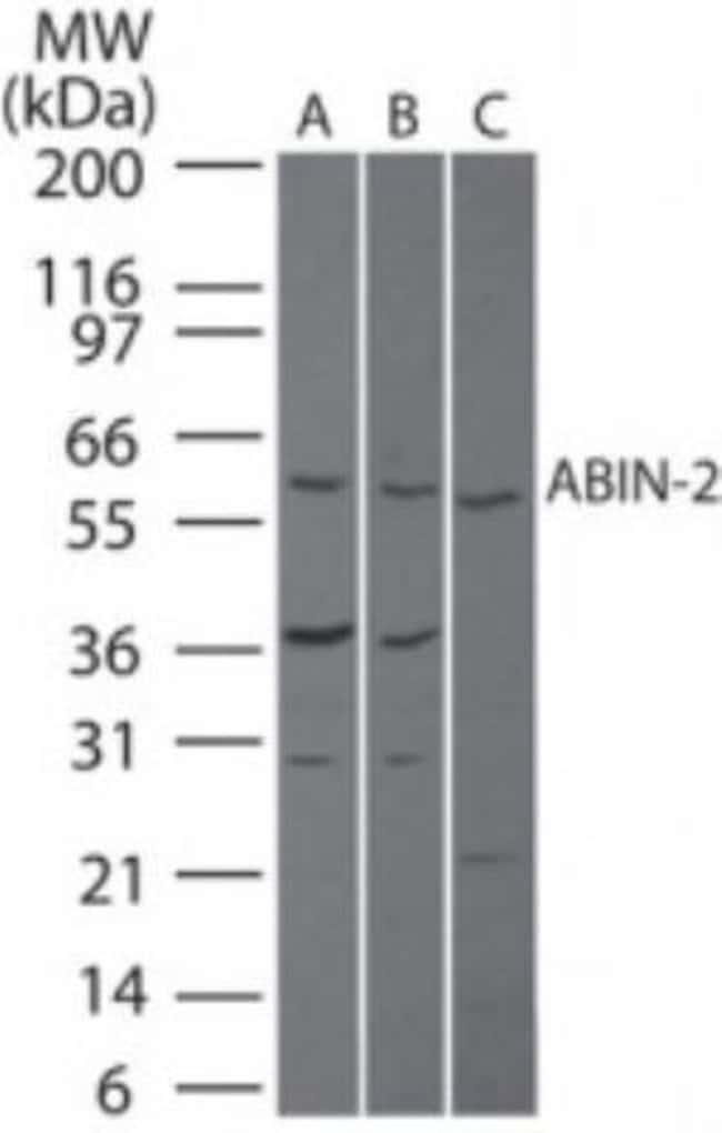 anti-TNIP2, Polyclonal, Novus Biologicals:Antibodies:Primary Antibodies