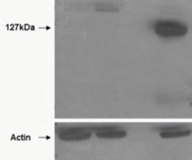 anti-TNKS2, Polyclonal, Novus Biologicals 0.1mg; Unlabeled:Antibodies