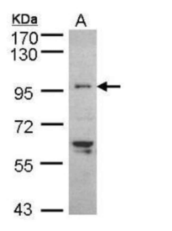 anti-TNNI3K, Polyclonal, Novus Biologicals 0.1mg; Unlabeled:Life Sciences