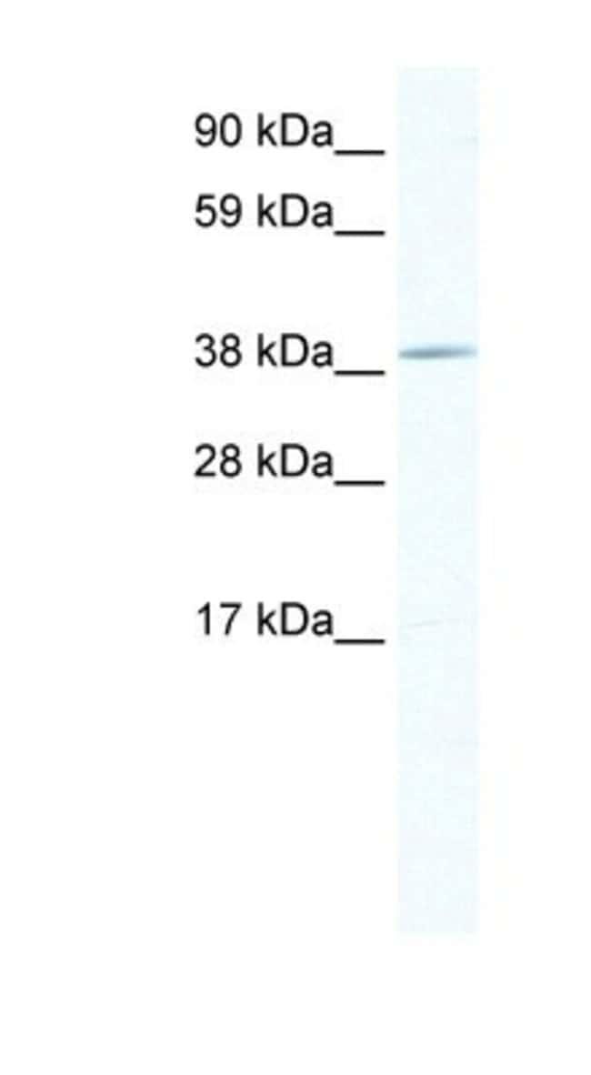 TOB1 Rabbit anti-Mouse, Polyclonal, Novus Biologicals 20µL; Unlabeled