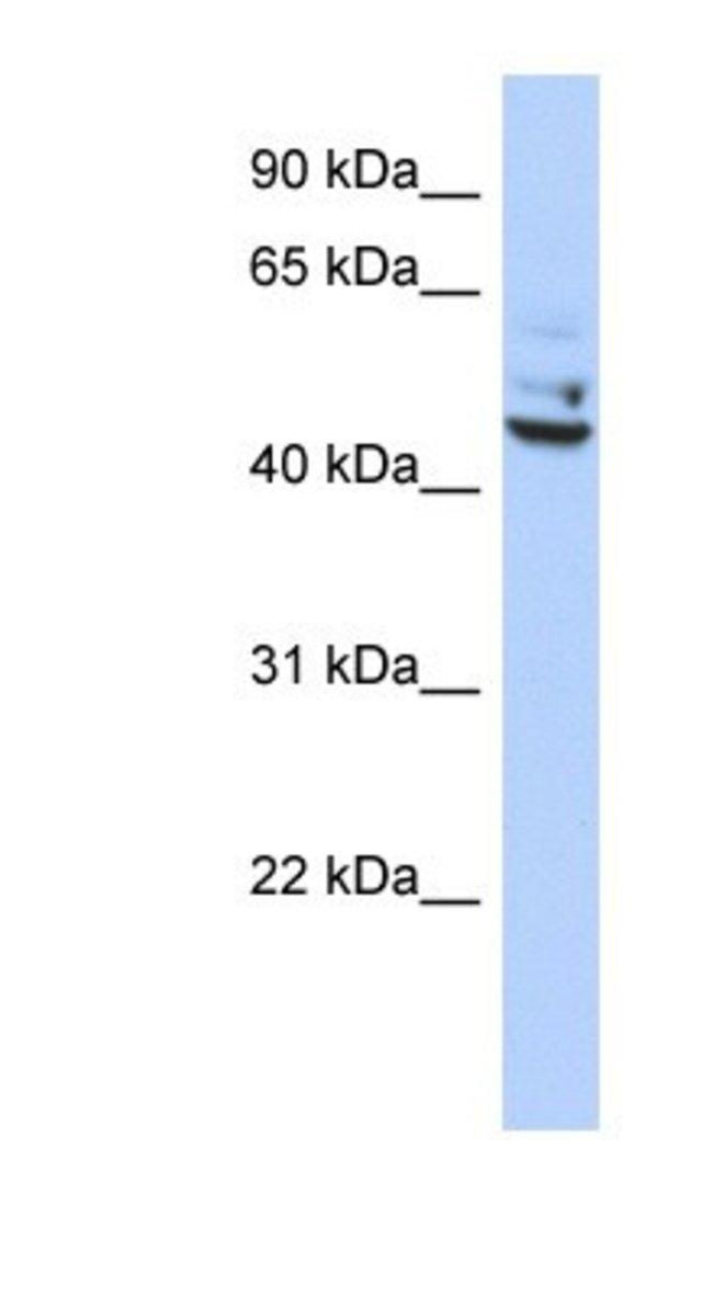 TP53I13 Rabbit anti-Human, Polyclonal, Novus Biologicals 20µL; Unlabeled