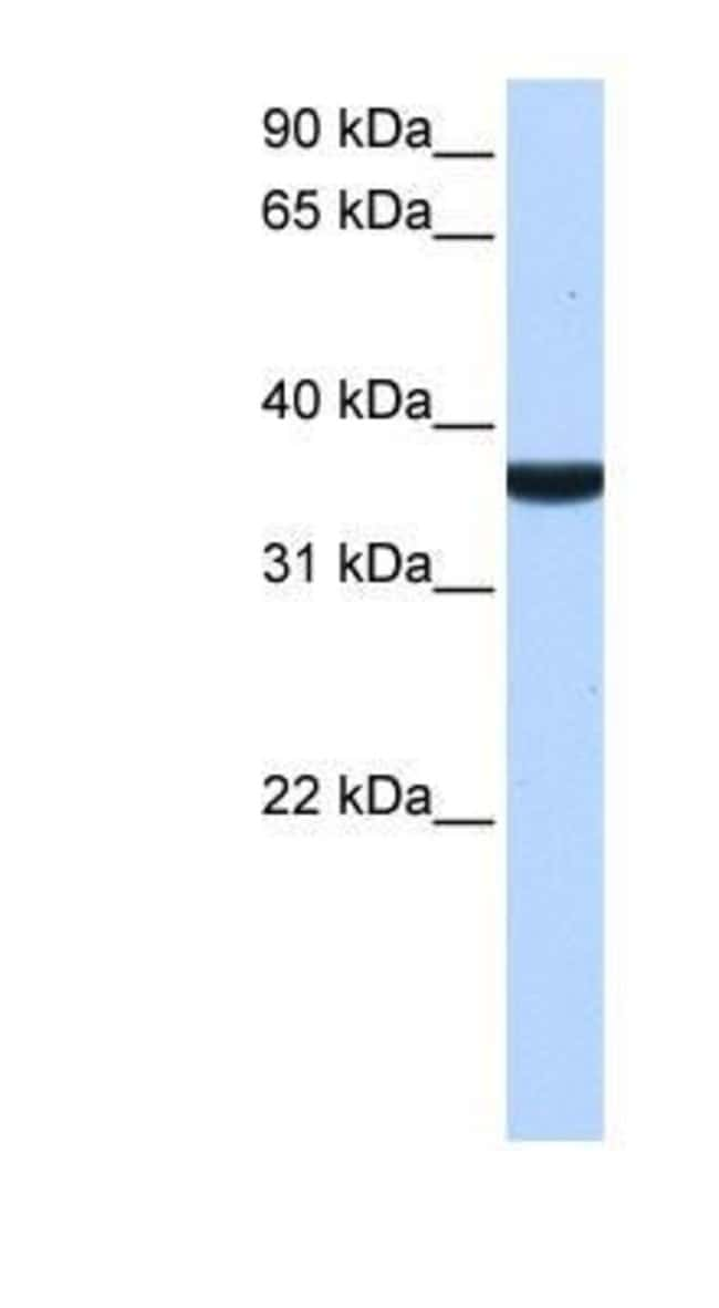 TP53I13 Rabbit anti-Human, Polyclonal, Novus Biologicals 20µL; Unlabeled