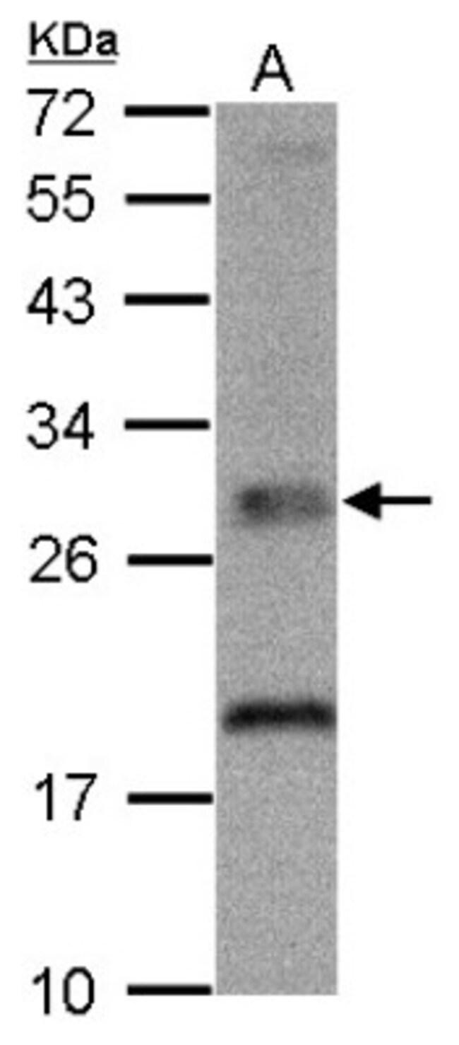 anti-TPK1, Polyclonal, Novus Biologicals 0.1mL; Unlabeled:Life Sciences