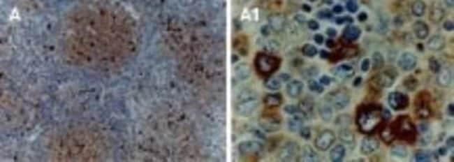 anti-TRAF-1, Polyclonal, Novus Biologicals:Antibodies:Primary Antibodies