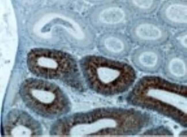 anti-TRAF-2, Polyclonal, Novus Biologicals:Antibodies:Primary Antibodies