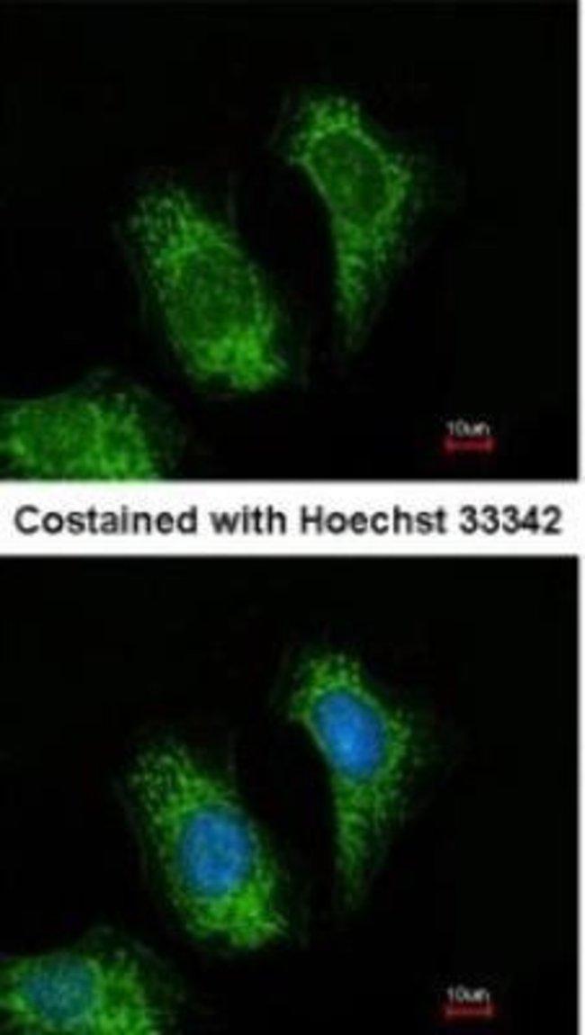 anti-TRAF-5, Polyclonal, Novus Biologicals 0.1mL; Unlabeled:Life Sciences