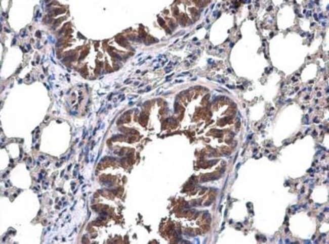 anti-TRAF-6, Polyclonal, Novus Biologicals 0.1mL; Unlabeled:Life Sciences