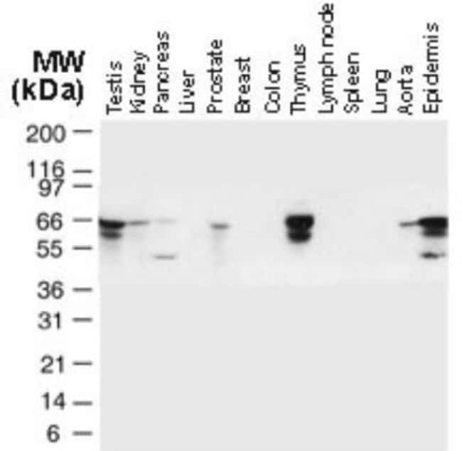 anti-TRAF-6, Polyclonal, Novus Biologicals:Antibodies:Primary Antibodies