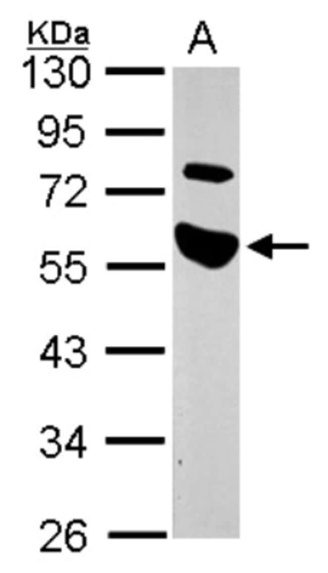 anti-TRAIP, Polyclonal, Novus Biologicals 0.1mL; Unlabeled:Antibodies