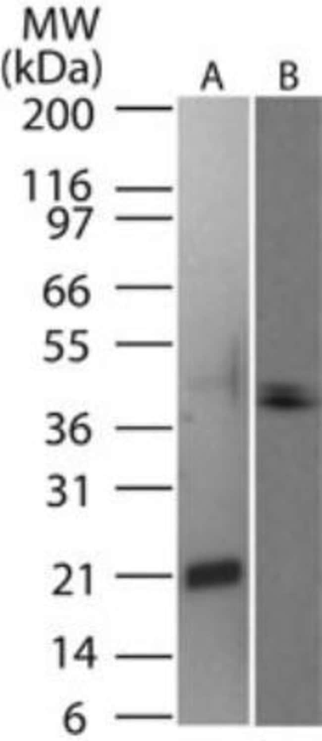 anti-TRANCE/TNFSF11/RANK L, Polyclonal, Novus Biologicals:Antibodies:Primary