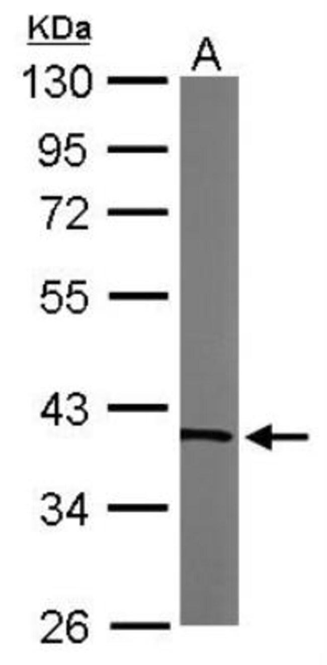 anti-Transaldolase 1, Polyclonal, Novus Biologicals 0.1mL; Unlabeled:Life