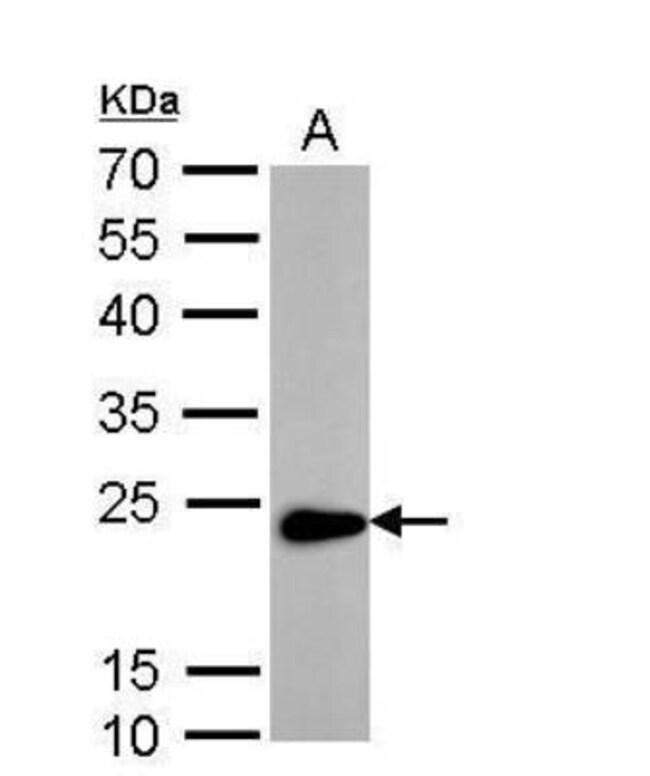 anti-Transgelin/TAGLN/SM22 alpha, Polyclonal, Novus Biologicals 0.1mg;