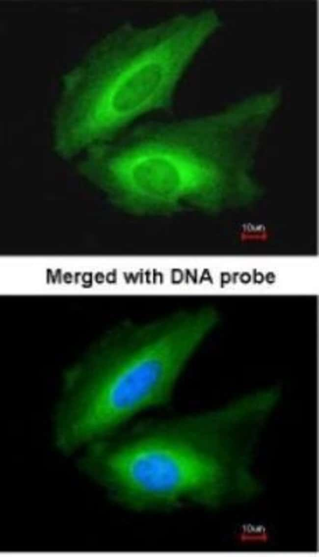 anti-Transglutaminase 2/TGM2, Polyclonal, Novus Biologicals 0.1mL; Unlabeled:Antibodies