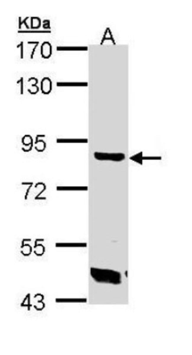 anti-TREH, Polyclonal, Novus Biologicals 0.1mg; Unlabeled:Life Sciences