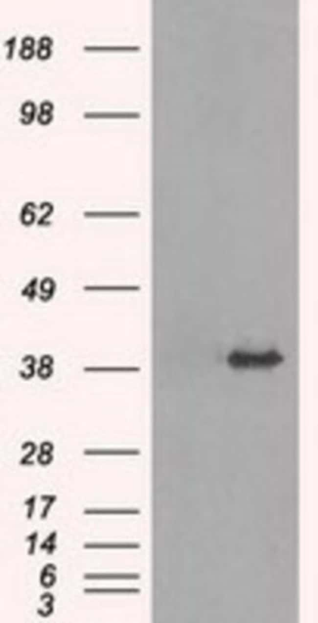 anti-TRIB2, Clone: 8D11, Novus Biologicals 0.1mL; Unlabeled:Life Sciences