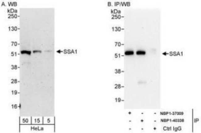 anti-TRIM21/SSA1, Polyclonal, Novus Biologicals 0.1mL; Unlabeled:Life Sciences