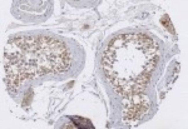 anti-TRIM29, Polyclonal, Novus Biologicals:Antibodies:Primary Antibodies