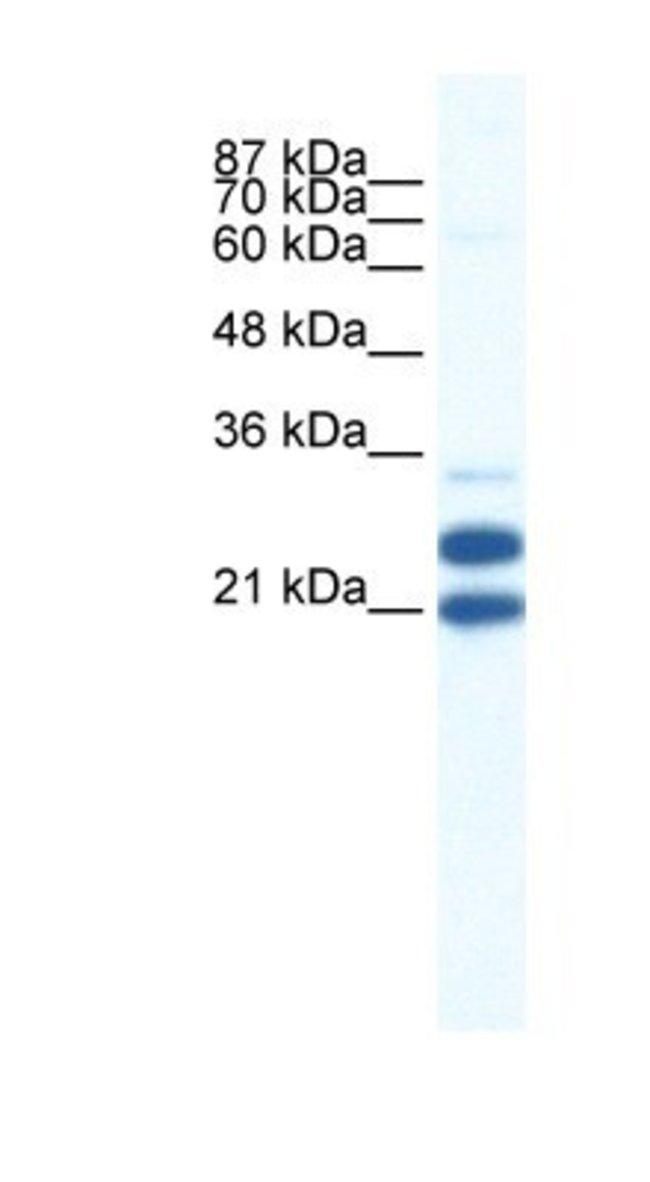 TRIM34 Rabbit anti-Human, Polyclonal, Novus Biologicals 100µL; Unlabeled:Life