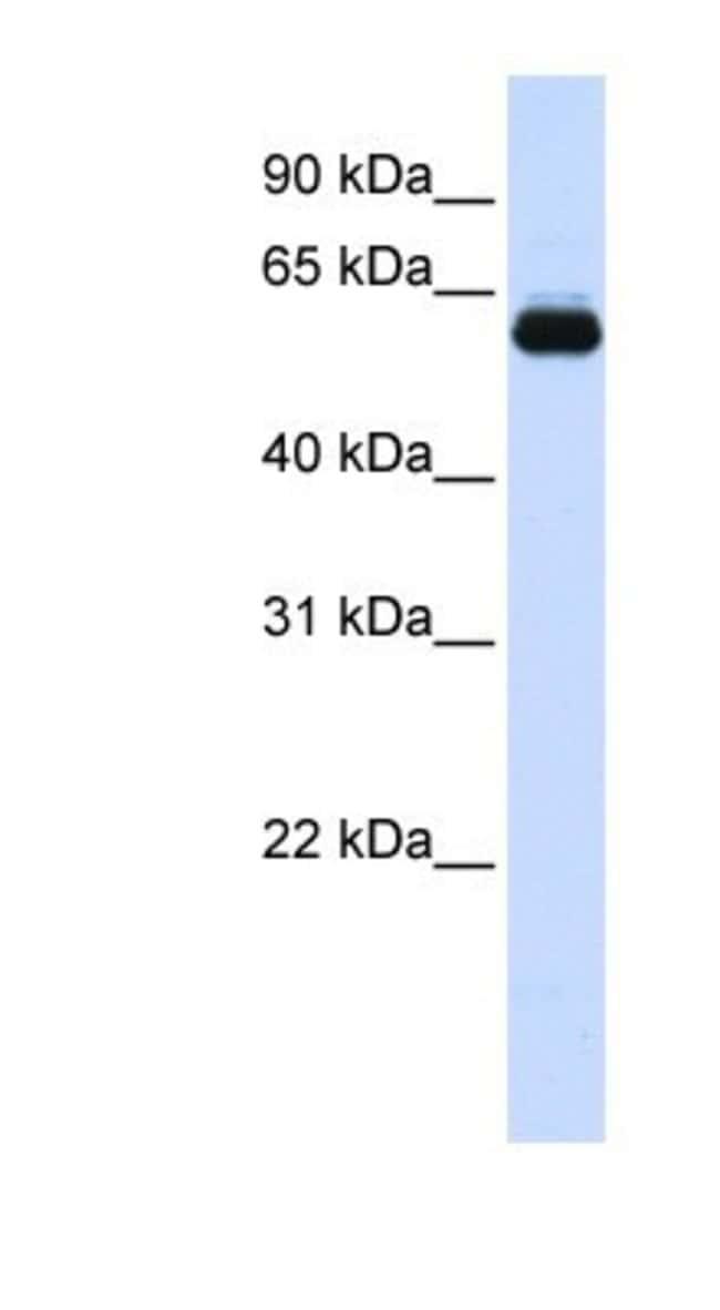 TRIM60 Rabbit anti-Human, Polyclonal, Novus Biologicals 100µL; Unlabeled:Life