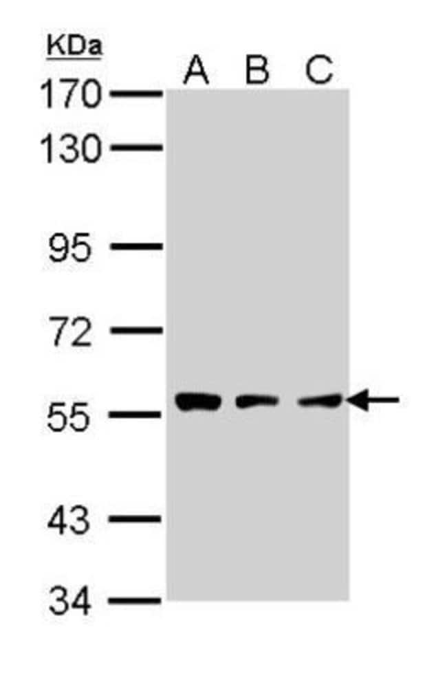 anti-Tripeptidyl-Peptidase I/TPP1, Polyclonal, Novus Biologicals 0.1mL;