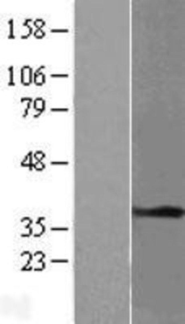 Novus Biologicals Tropomyosin-1 Overexpression Lysate (Native) 0.1mg:Life
