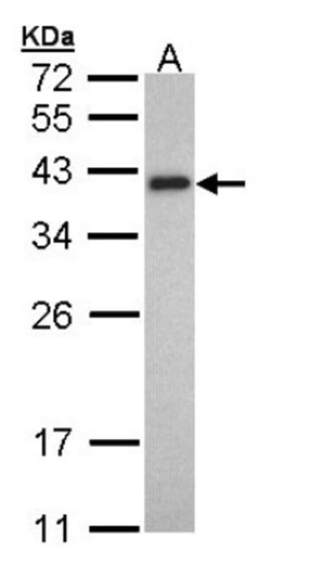 anti-tropomyosin-2, Polyclonal, Novus Biologicals 0.1mL; Unlabeled:Antibodies