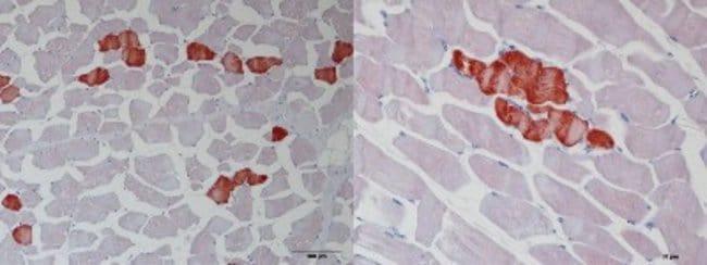 anti-Troponin T type 1 (slow skeletal), Polyclonal, Novus Biologicals 0.1mL;