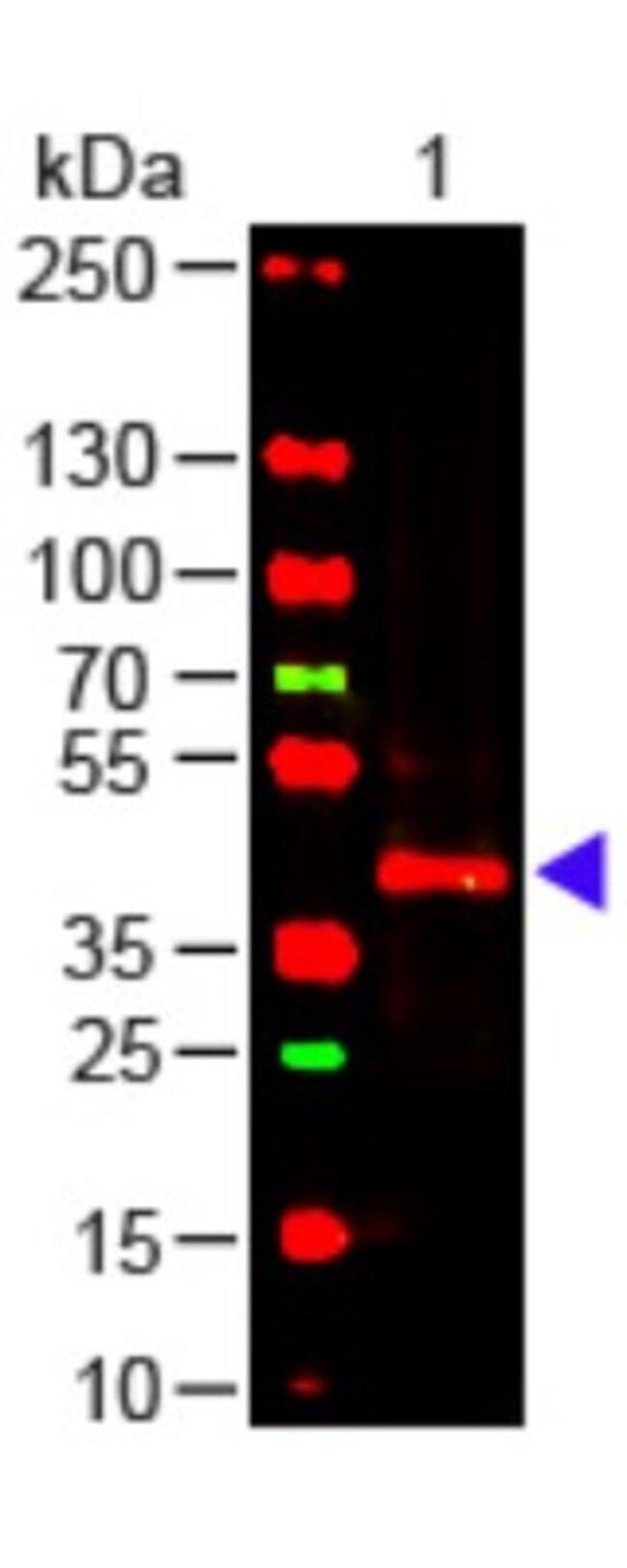 TRPC6 Mouse anti-Human, Clone: 3F2.H10.F2, Novus Biologicals 0.1mg; Unlabeled:Life
